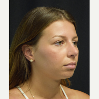18-24 year old woman treated with Rhinoplasty after 3179659
