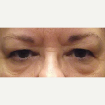 55-64 year old woman treated with Eyelid Surgery before 3482821