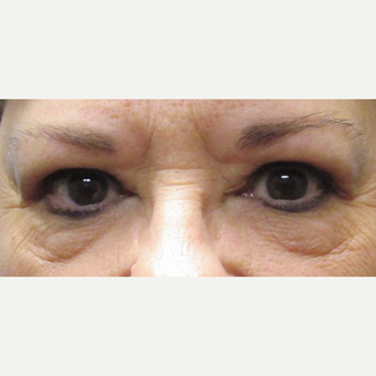 55-64 year old woman treated with Eyelid Surgery after 3482821