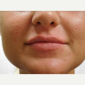 25-34 year old woman treated with Lip Augmentation before 3440962
