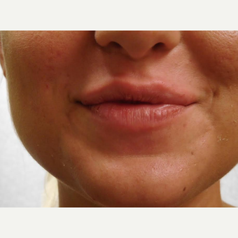 25-34 year old woman treated with Lip Augmentation after 3440962