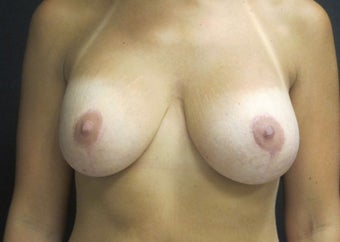 25-34 year old woman treated with Breast Implant Revision after 2988089