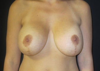 25-34 year old woman treated with Breast Implant Revision before 2988089