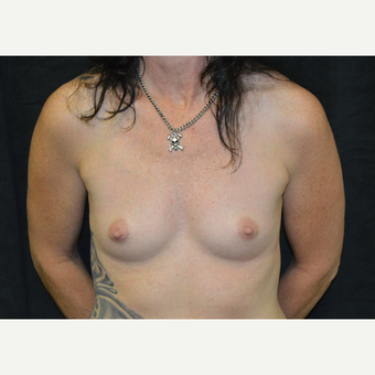 45-54 year old man treated with Breast Augmentation before 3181923