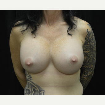 45-54 year old man treated with Breast Augmentation after 3181923