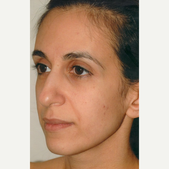 35-44 year old woman treated with Rhinoplasty before 3465404