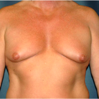 50 year old man treated with Male Breast Reduction before 3720891