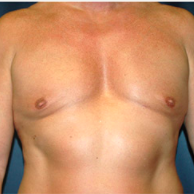 50 year old man treated with Male Breast Reduction after 3720891