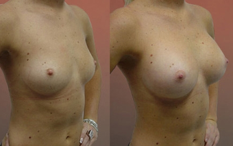 Breast Implants before 974254