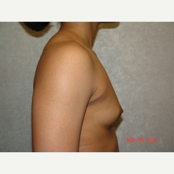 18-24 year old woman treated with Breast Augmentation before 3662970
