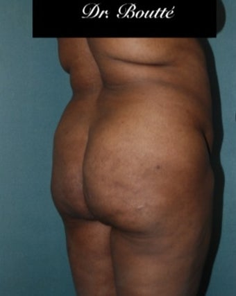 29 year old woman treated with Fat Transfer to Buttocks & Hips. SmartLipo to Abdomen, Flanks, & Back 1811395