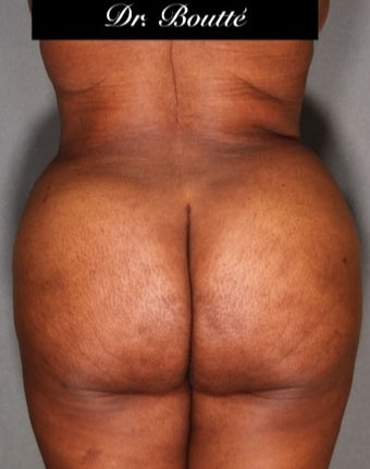 29 year old woman treated with Fat Transfer to Buttocks & Hips. SmartLipo to Abdomen, Flanks, & Back after 1811395