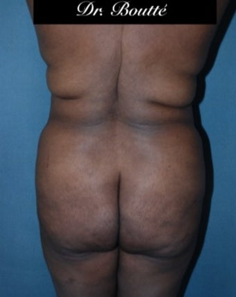 29 year old woman treated with Fat Transfer to Buttocks & Hips. SmartLipo to Abdomen, Flanks, & Back before 1811395