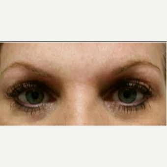 35-44 year old woman treated with Permanent Makeup before 2929910