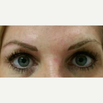 35-44 year old woman treated with Permanent Makeup after 2929910