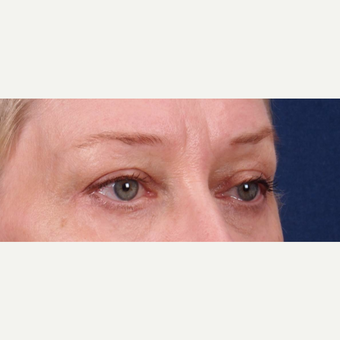 Brow lift and upper and lower eyelid blepharoplasty after 3188216