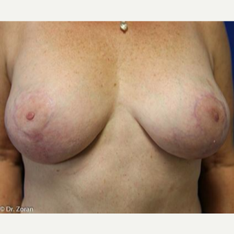 35-44 year old woman treated with Breast Lift after 3037136