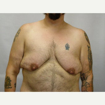 25-34 year old man treated with FTM Chest Masculinization Surgery before 2094597