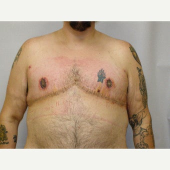 25-34 year old man treated with FTM Chest Masculinization Surgery after 2094597
