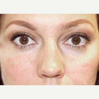 25-34 year old woman treated with Restylane after 3138504