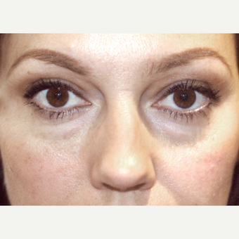 25-34 year old woman treated with Restylane before 3138504