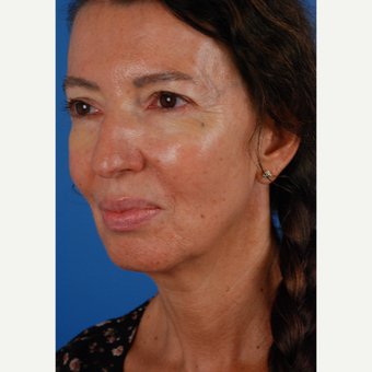 55-64 year old woman treated with Lower Face Lift, chin implant and upper eyelid surgery before 3663156