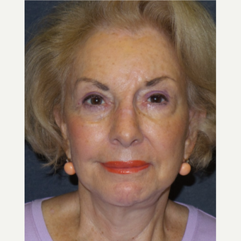 75 and up year old woman treated with Facelift after 3466694