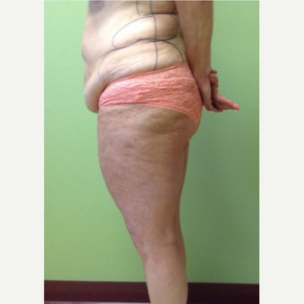 45-54 Year Old Woman Treated with Smart Lipo before 1772536