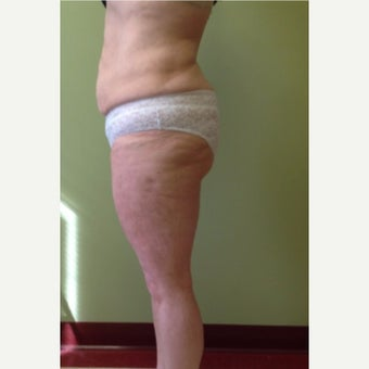 45-54 Year Old Woman Treated with Smart Lipo after 1772536