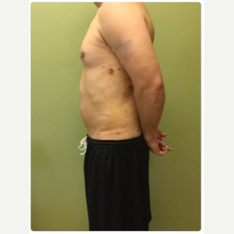 35-44 year old man treated with Smart Lipo after 3098155
