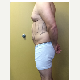 35-44 year old man treated with Smart Lipo before 3098155