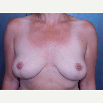 43 year old lady desired removal of old gel implants and a breast lift.