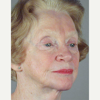 65-74 year old woman treated with Facelift before 3213554