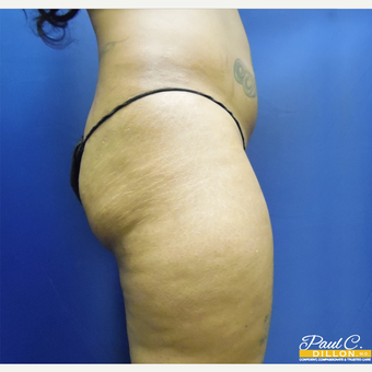 25-34 year old woman treated with Brazilian Butt Lift before 3576334