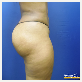 25-34 year old woman treated with Brazilian Butt Lift after 3576334