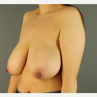 35-44 year old woman treated with Breast Reduction before 3103867