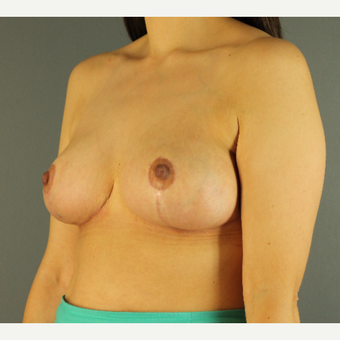 35-44 year old woman treated with Breast Reduction after 3103867