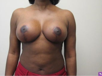 Breast Lift after 814004