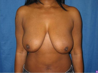 Breast Lift before 814004