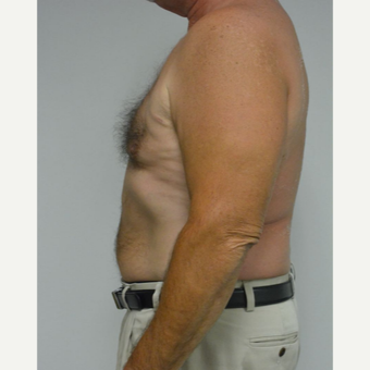 55-64 year old man treated with Male Breast Reduction after 3054054