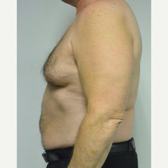55-64 year old man treated with Male Breast Reduction before 3054054