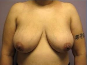 25-34 year old woman treated with Breast Lift before 3482654