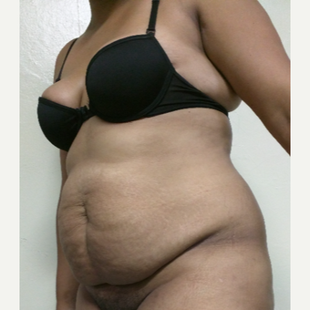 25-34 year old woman treated with Tummy Tuck before 3756497