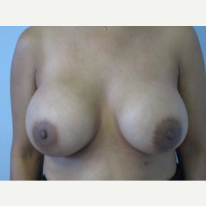 Breast Implant Revision after 3168586
