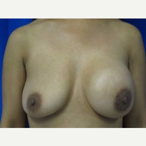 Breast Implant Revision before 3168586