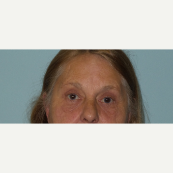 65-74 year old woman treated with Eye Bags Treatment after 2717908
