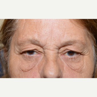 65-74 year old woman treated with Eye Bags Treatment before 2717908