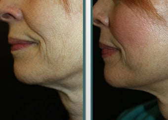 UpLift - a local anesthesia facelift before 1065289