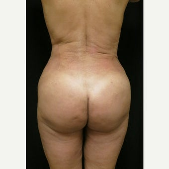 45-54 year old woman treated with Fat Transfer after 1536206