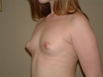 Breast Augmentation before 683102